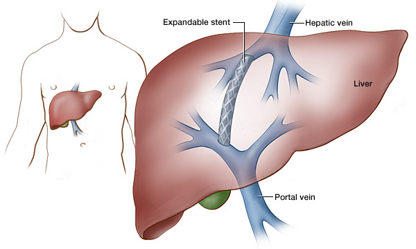 Liver Disease    Portal Hypertension Clinic